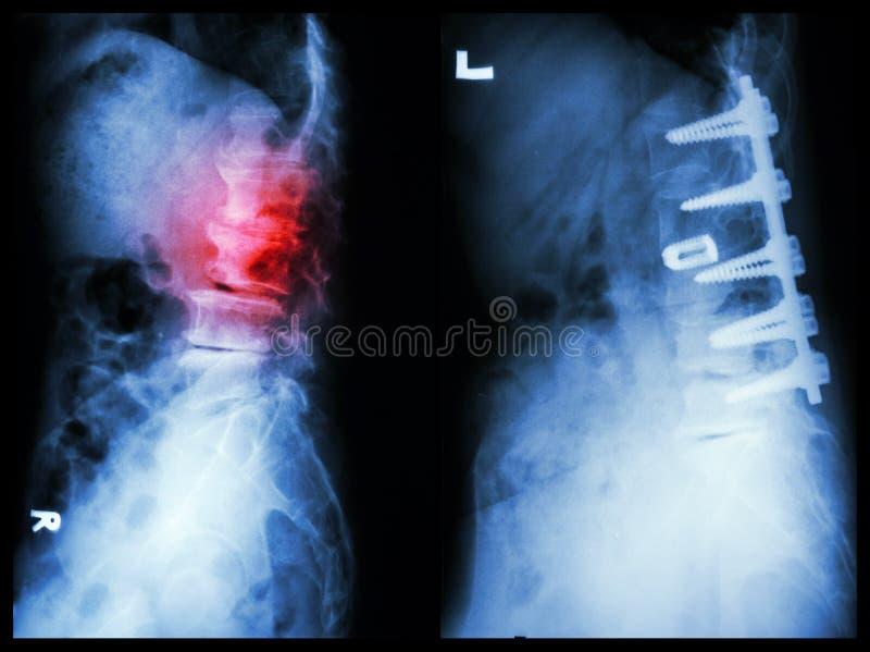 Spondylose photo libre de droits
