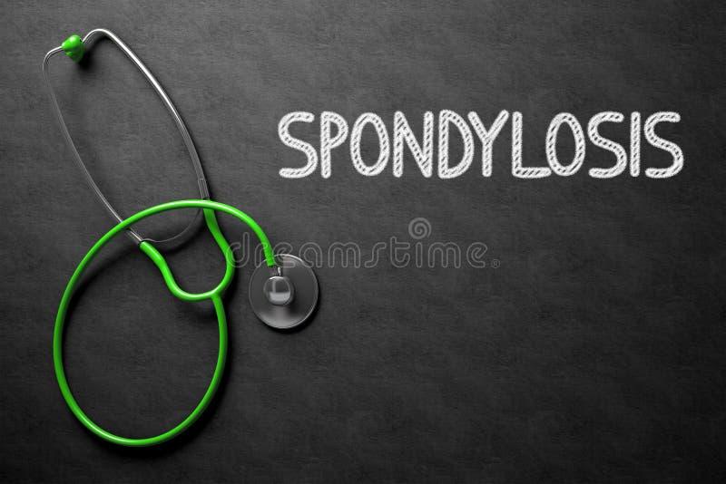 Spondylosis on Chalkboard. 3D Illustration. royalty free stock images