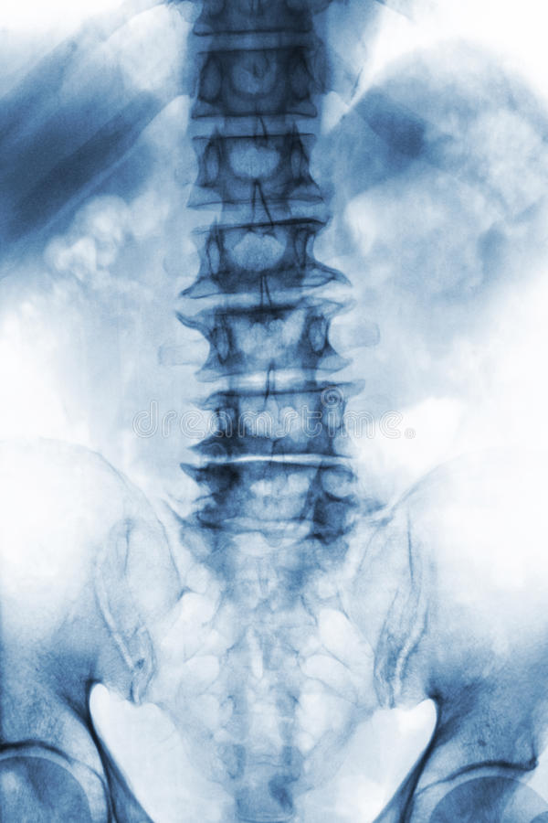 Spondylosis . film x-ray lumbosacral spine of old aged patient show osteophyte , collapse spine from degenerative process . Front. View royalty free stock photography
