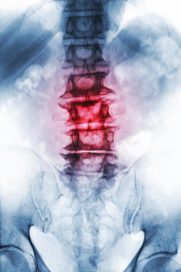 Spondylosis . film x-ray lumbosacral spine of old aged patient show osteophyte , collapse spine from degenerative process . Front. View stock image