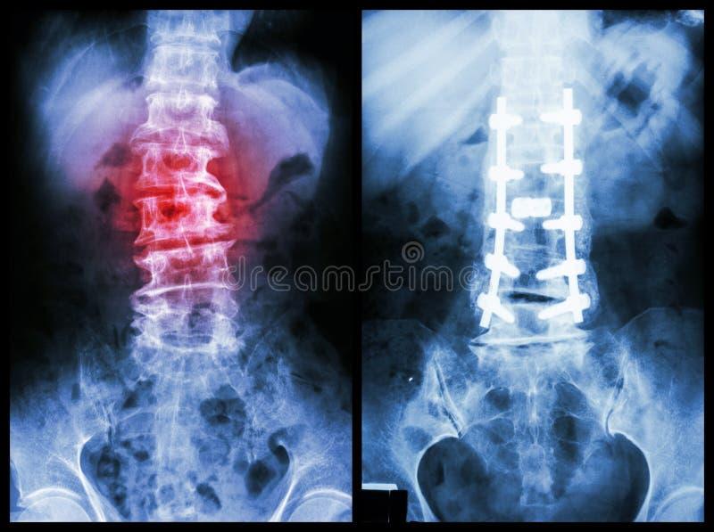 Spondylosis stock photo