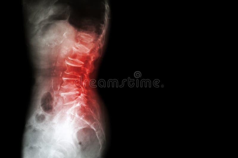 Spondylosis , Spondylolisthesis ( Film x-ray lumbo - sacral spine show spine collapse , decrease in disc space , bony spur format stock image