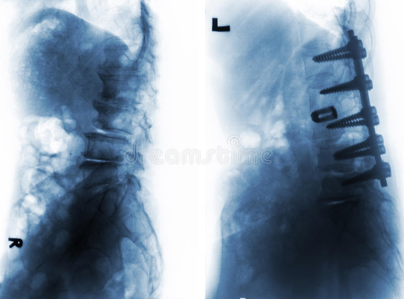Spondylosis . Before and After surgery . stock photos