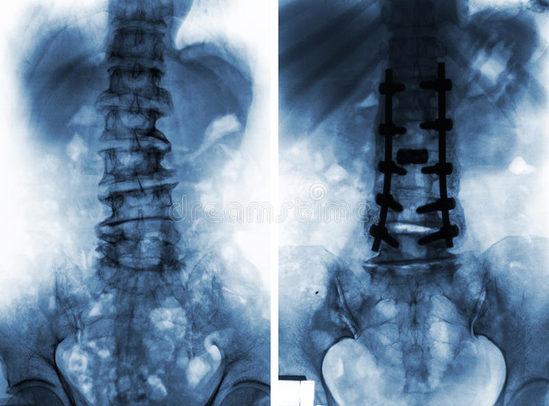 Spondylosis . Before and After surgery . royalty free stock photography