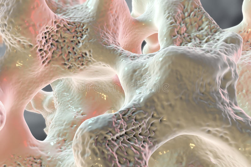 Spongy bone tissue affected by osteoporosis. 3D illustration vector illustration