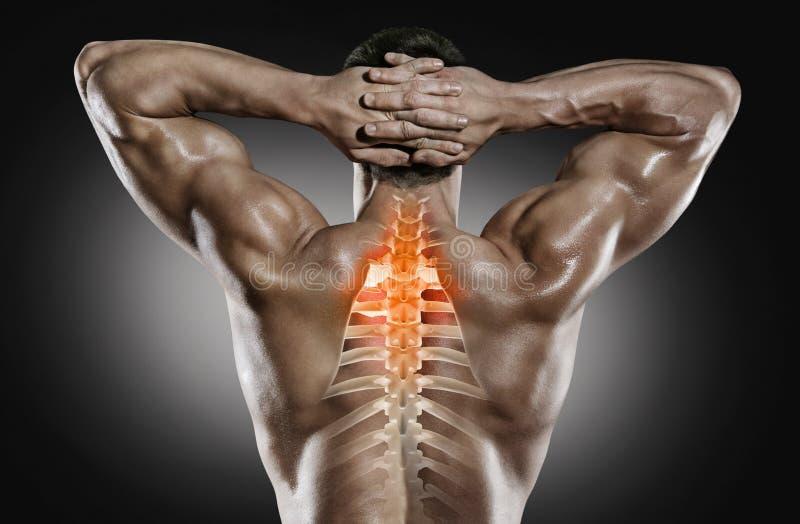 Sport e sanità Dolore della spina dorsale fotografia stock libera da diritti