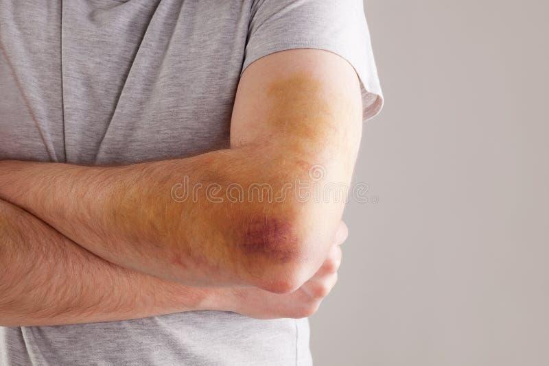 Sportskada smärta royaltyfria bilder