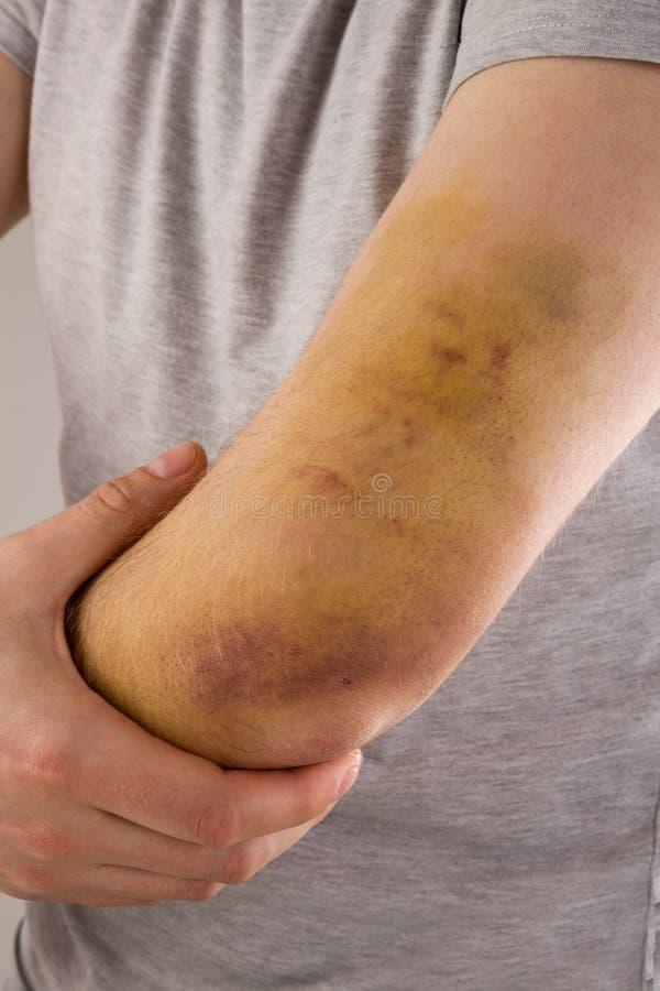 Sportskada Stort blåmärke på underarmen fotografering för bildbyråer