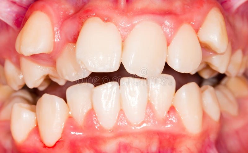 Spostamento dentario immagine stock