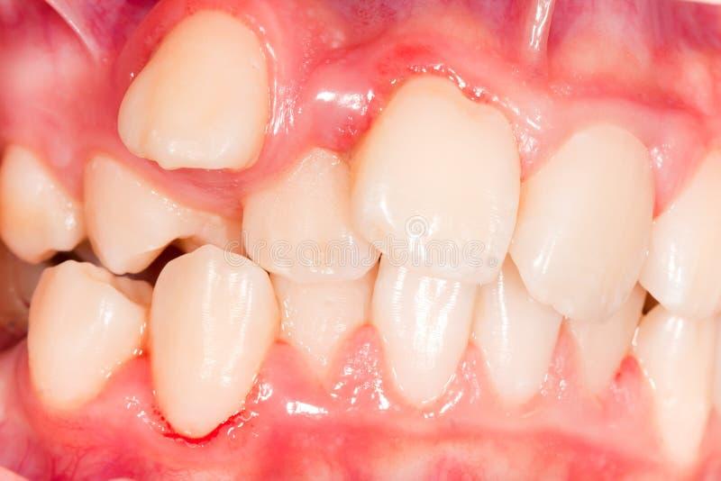 Spostamento dentario fotografia stock
