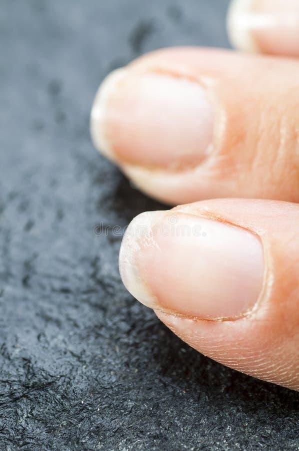 Spröde schädigende Fingernägel lizenzfreie stockfotos