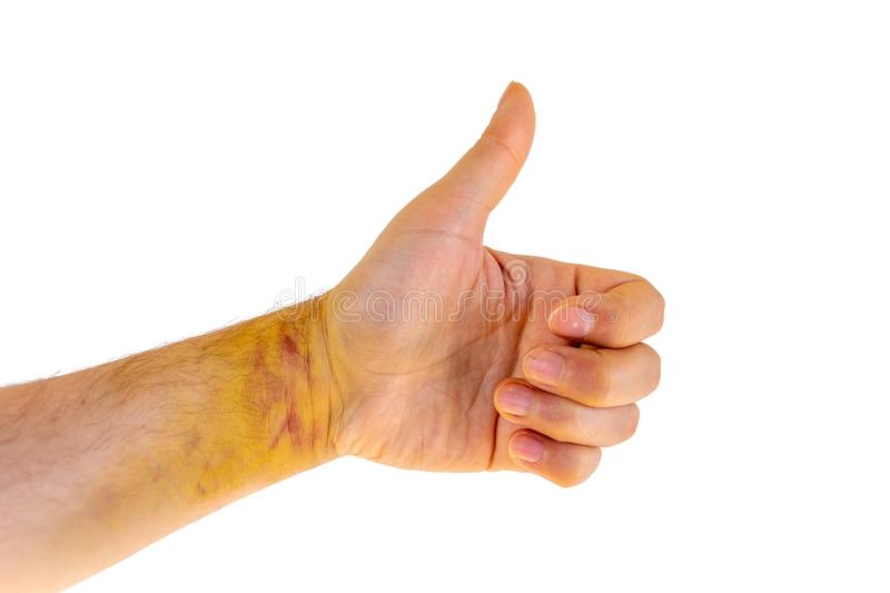 Sprained wrist injury showing signs of healing, isolated on white background - common sport accident. Hand with thumb up. royalty free stock images