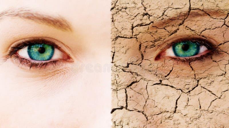Sprucken hud arkivfoto