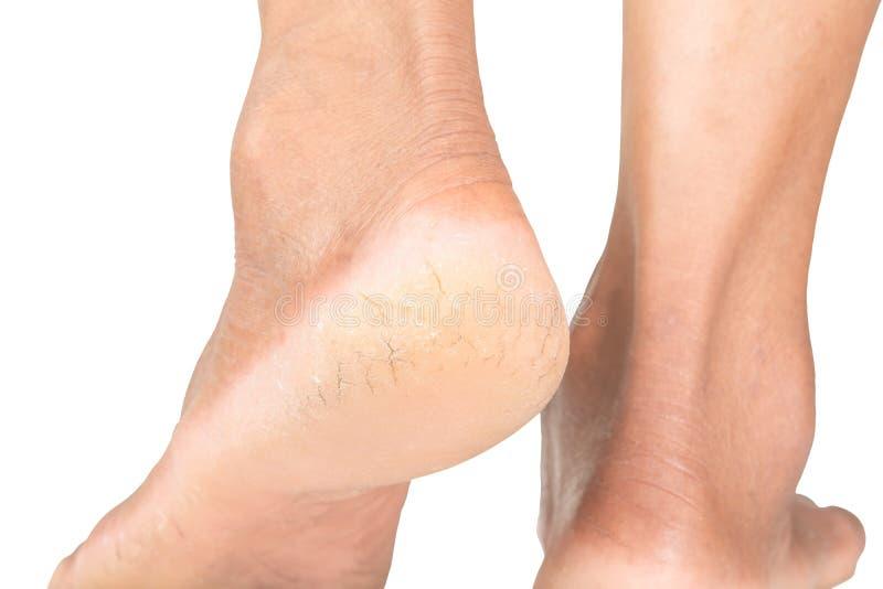 Spruckna hälhudsprickor, hudproblem arkivbild