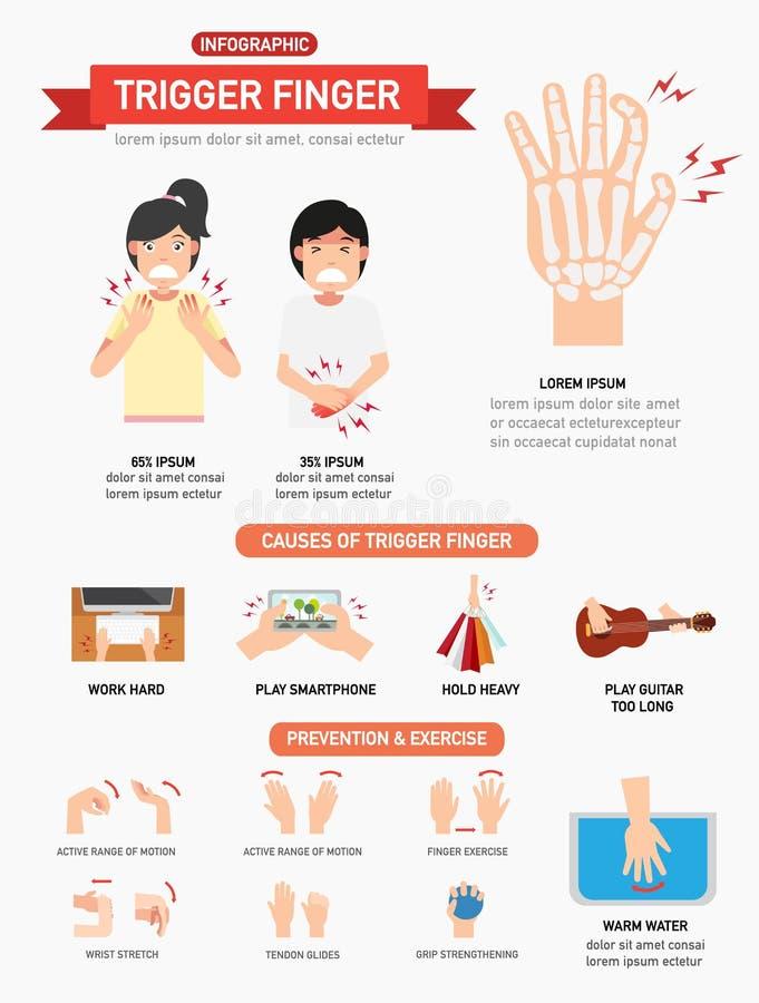 Spustowy palcowy infographic ilustracji