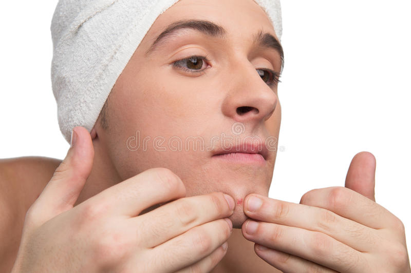 Squeezing a pimple. Young man is squeezing a pimple stock photo