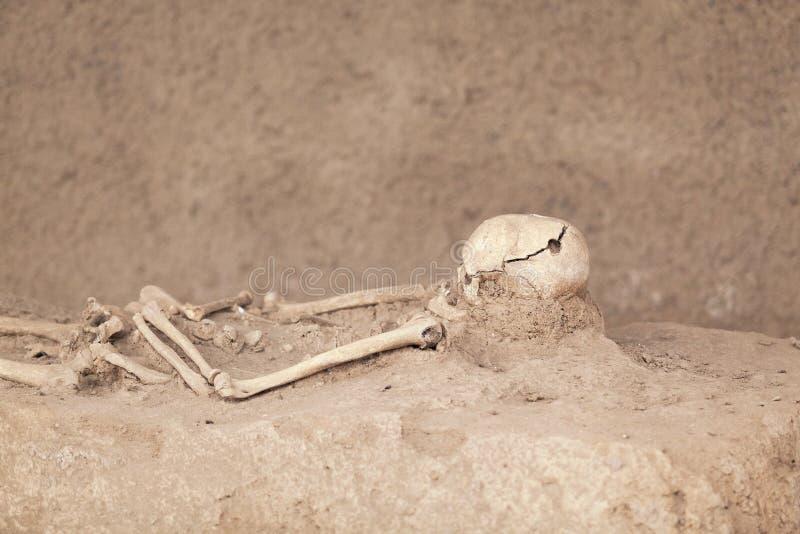 squelette Crâne de Trepanned photos stock