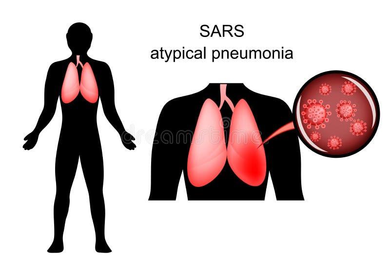 SRAS poumons enflammés et l'agent causatif illustration de vecteur