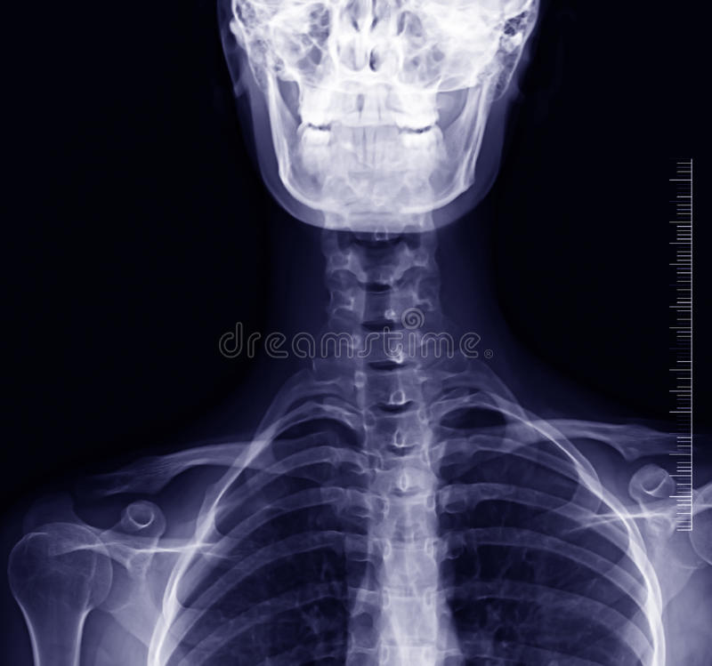 Sscoliosis x-ray royalty free stock photos