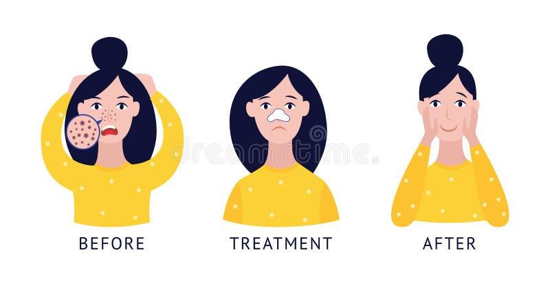 Ställ in av kvinna med stil för tecknad film för behandling för näspormaskar före och efter plan stock illustrationer