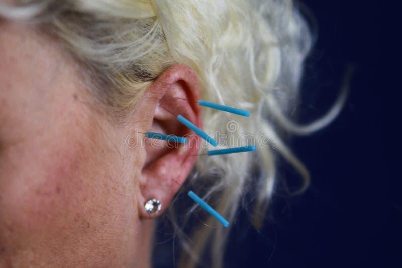 Stäng sig upp av det mänskliga kvinnliga örat med blåa visare: Öraakupunktur som en form av alternativ kinesisk medicin royaltyfria foton