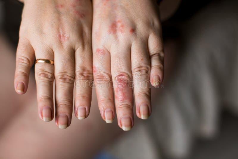 Stäng sig upp av handen med mycket torr hud och djupa sprickor på knogar vart begreppshanden har den sena pillen för sjukvårdhjäl royaltyfria bilder