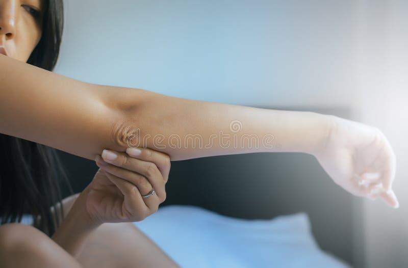 Stäng sig upp av kvinna med torr hud på armbåge och armen, kropp- och hälsovårdbegrepp fotografering för bildbyråer