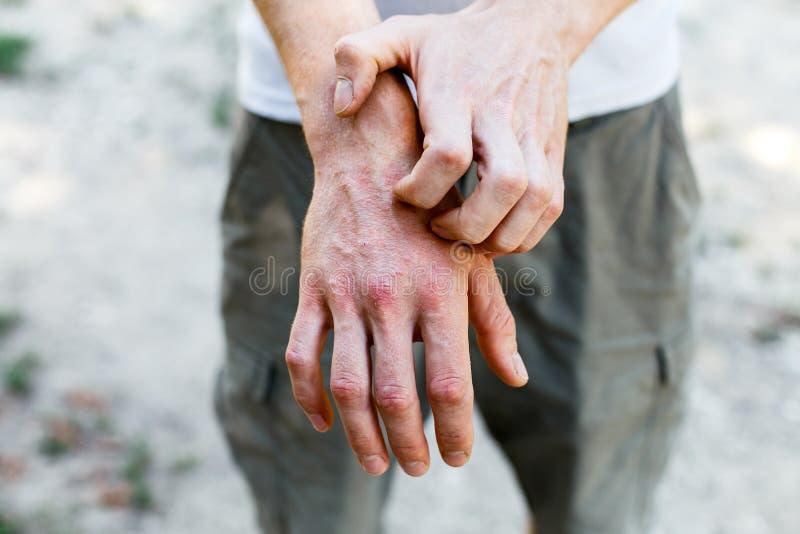 Stäng sig upp dermatit på hud, dåligt allergisk överilad eksemhud av patienten, för symptomhud för atopic dermatit textur för det royaltyfria foton