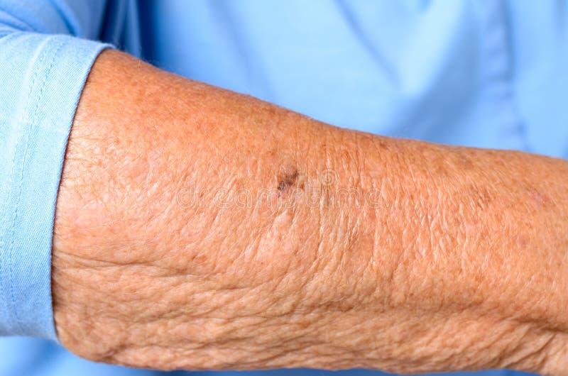 Stäng sig upp detaljen av underarmen av en äldre kvinna royaltyfri fotografi