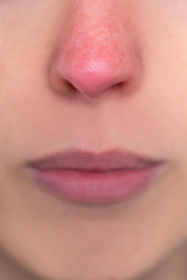 Stäng sig upp, kvinnan med en röd näsa, allergin, hypothermia eller rosaceaen arkivfoton