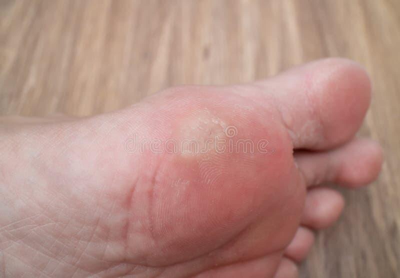 problem med fötter