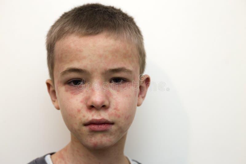 Stående av det sjuka ledsna pojkebarnet som över hela lider från mässling eller vattkoppor med framsidan för bulor Smittsamma bar arkivfoto