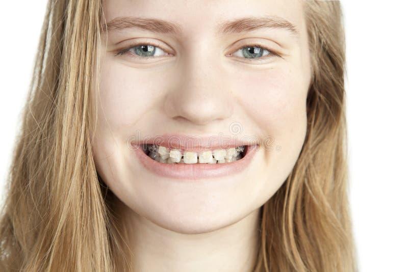Stående av en ung flicka med hänglsen arkivfoton