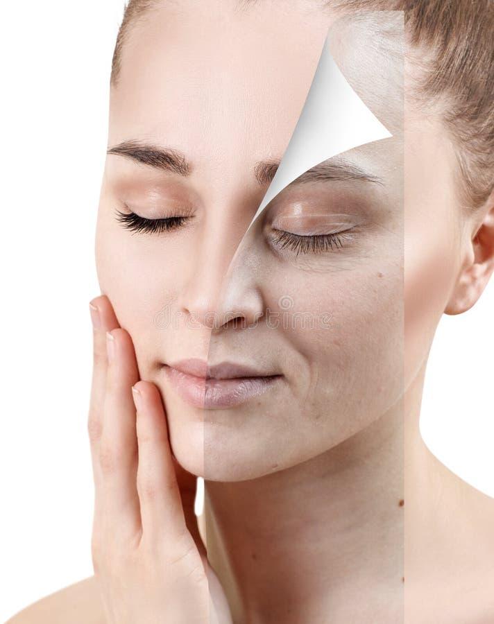 Stående av hudföryngring för kvinna före och efter arkivbilder