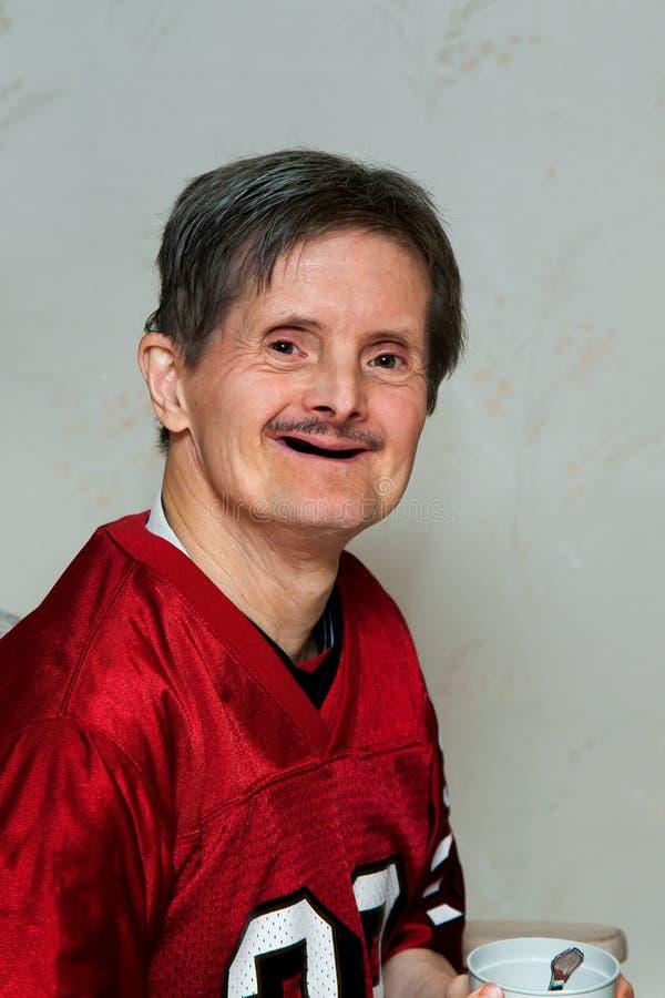 Ståenden av åldring besegrar syndrommannen med inga tänder som han är Ho arkivfoto