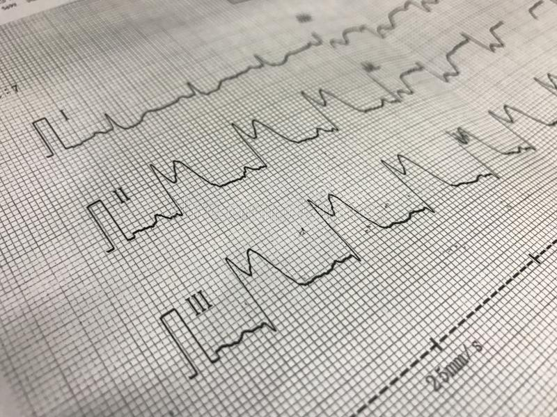 ST elevation on ECG paper stock photos