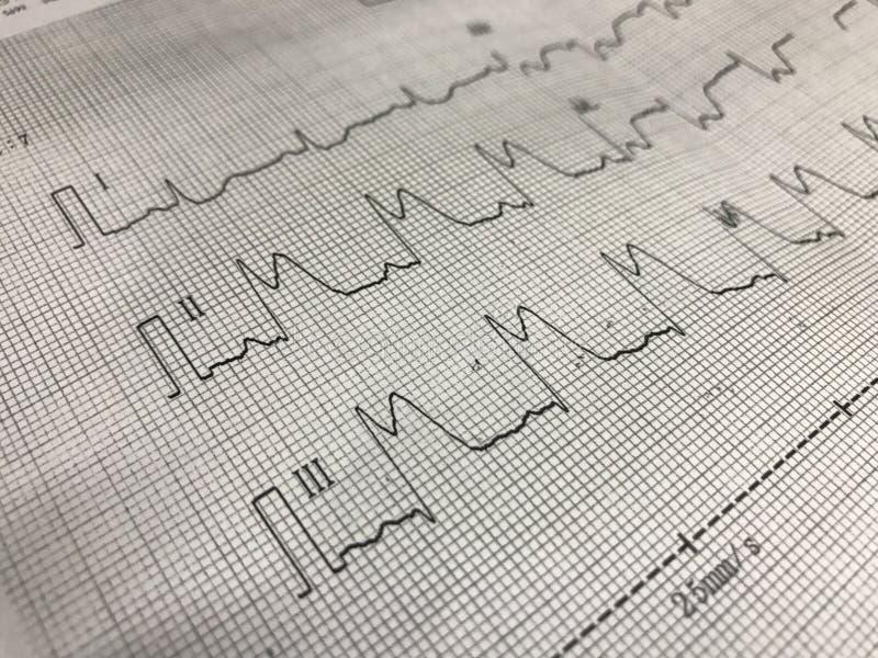 St-höjd på ECG-papper arkivfoton