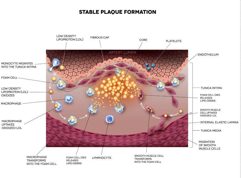 Stabiele plaque-vorming, Atherosclerose stock illustratie