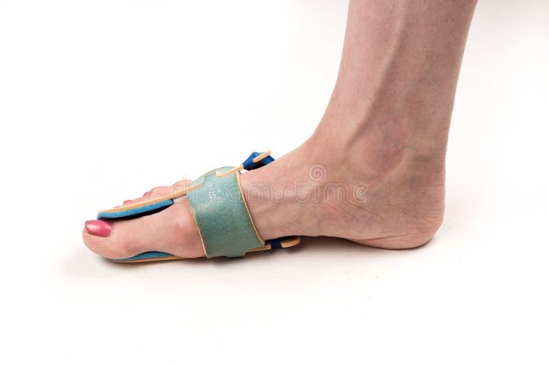 Stabiliserende orthosis voor de correctie van de grote teen op het vrouwenbeen wanneer hallux valgus, 1 witte voet, geïsoleerd cl stock foto