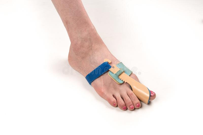 Stabilizing orthosis for the correction of the big toe on the woman leg when hallux valgus, 1 foot, close-up isolated, white stock photo