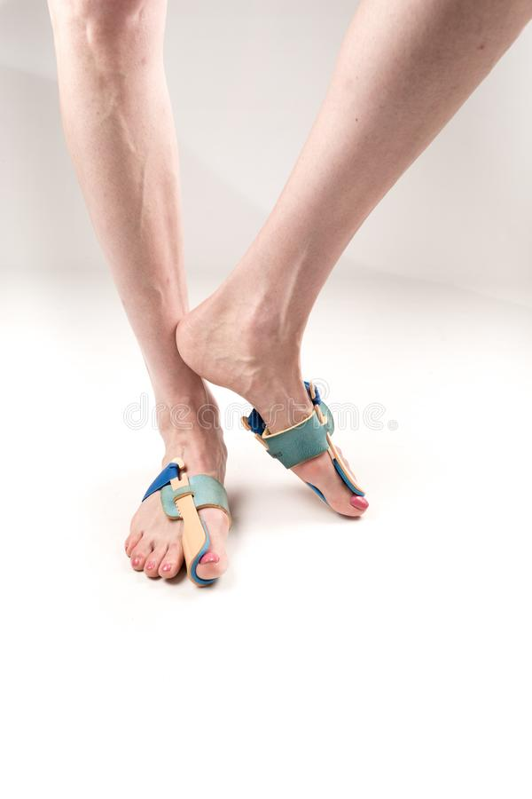 Stabilizing orthosis for the correction of the big toe on the woman legs when hallux valgus, 2 legs, close-up isolated, white stock photos