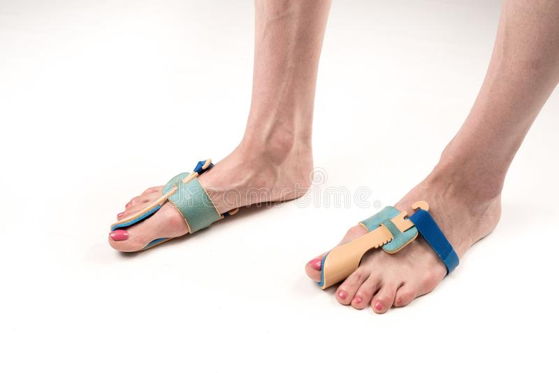 Stabilizing orthosis for the correction of the big toe on the woman legs when hallux valgus, 2 legs, close-up isolated, white stock photo