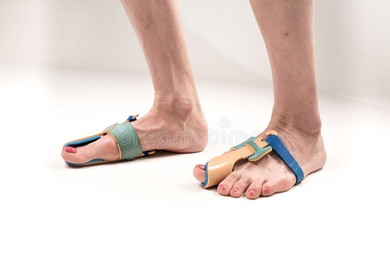 Stabilizing orthosis for the correction of the big toe on the woman legs when hallux valgus, 2 legs, close-up isolated, white royalty free stock images