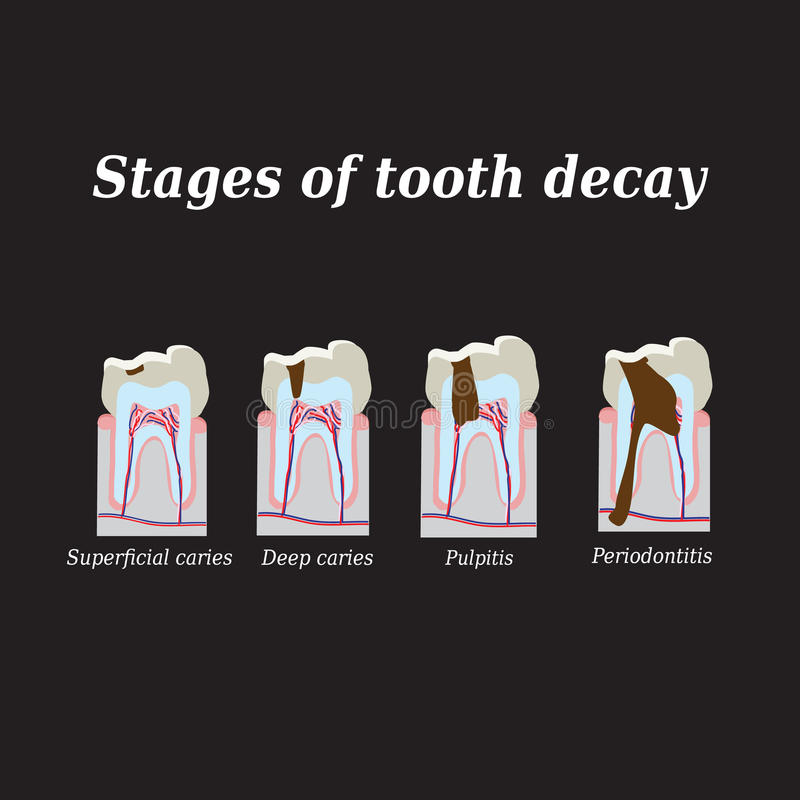 Stadia van ontwikkeling van tandbederf Vector stock illustratie