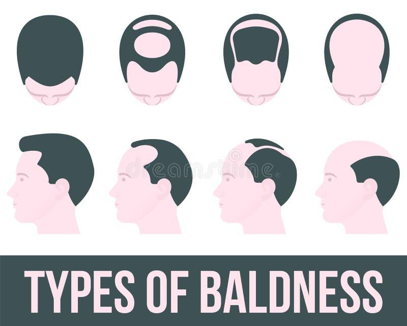 Stadien des Haarausfalls und der Behandlung vektor abbildung