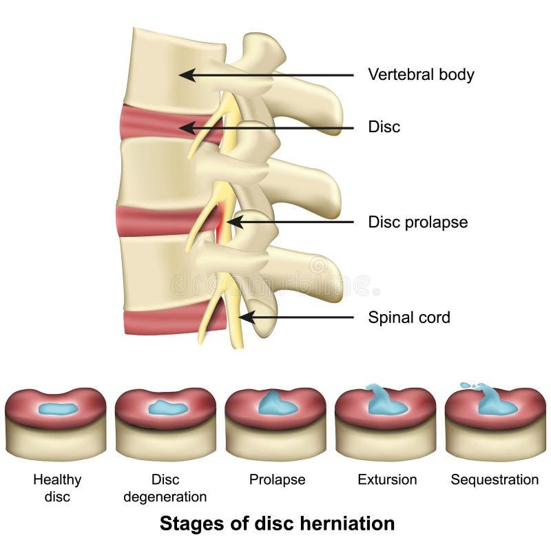 Stadien von Diskette herniation Dorn und von medizinischer Vektorillustration der Diskettenanatomie 3d lizenzfreie abbildung