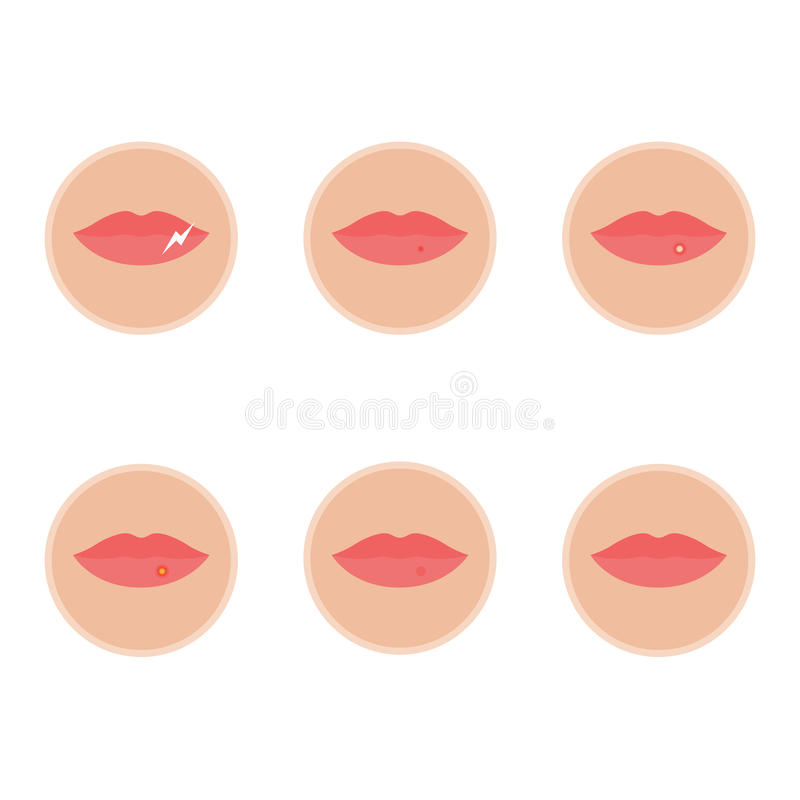 Sieht aus am wie herpes anfang Lippenherpes im