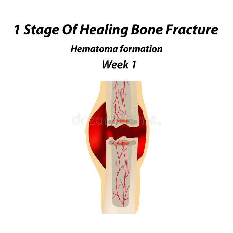 1 Stadium Heilenknochen-Bruch Bildung der Schwiele Der Knochenbruch Infographics Vektorillustration auf lokalisiert stock abbildung