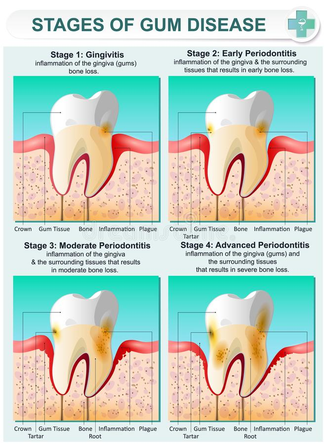 Stage of Gum Disease. Vector detailed illustration of the stages of gum disease. Image of teeth and gums in a section of bone tissue with affected areas and vector illustration