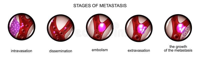 Stage metastasis of cancer cells stock illustration